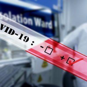48 са излекуваните от COVID-19 за денонощие, новозаразени са 14
